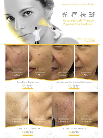 Picture of UR Light Therapy Pigmentation Voucher